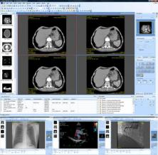 Sante DICOM Viewer Pro Screenshot